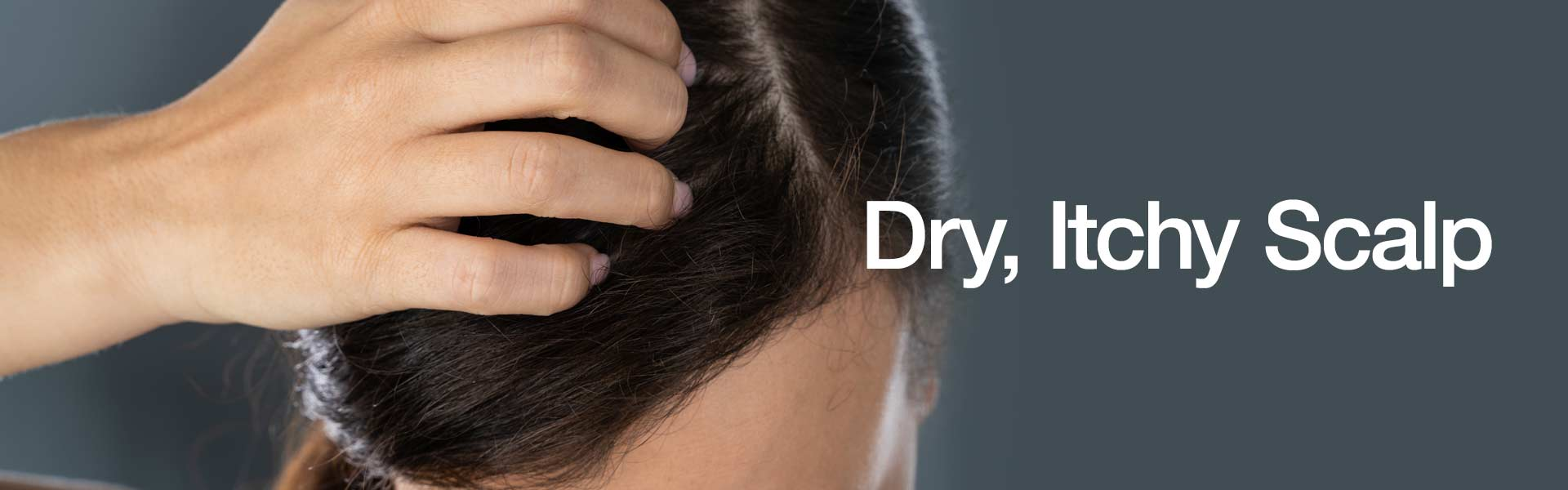 Dry, Itchy Scalp